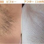 ジェイエステティックのワキ脱毛1回目-ビフォーアフター公開 フェイシャルもついて300円!