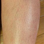 ひざ下の毛は何本?TBCで永久脱毛したらいくらかかる?計算してみました