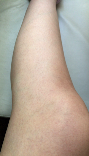 2週間後の足