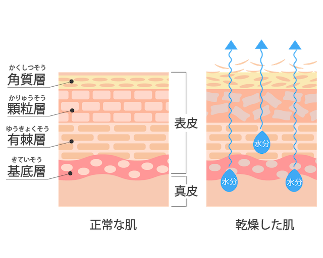 乾燥肌の図