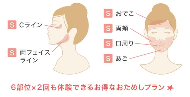 顔の脱毛箇所