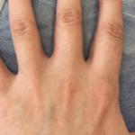 ストラッシュ全身脱毛9回目の口コミ!指の毛にも脱毛効果を確認